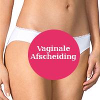 Vaginale-afscheiding